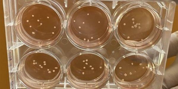 ASTAR_Scientists grow miniature brains_600x300px